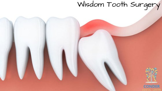 Tips for Fast Recovery after Wisdom Tooth Surgery
