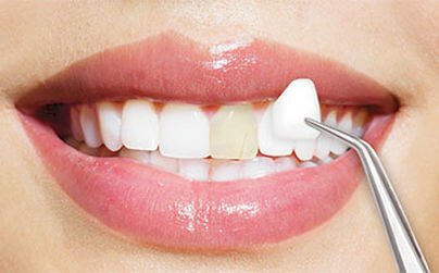 The Pros and Cons of Porcelain Veneers