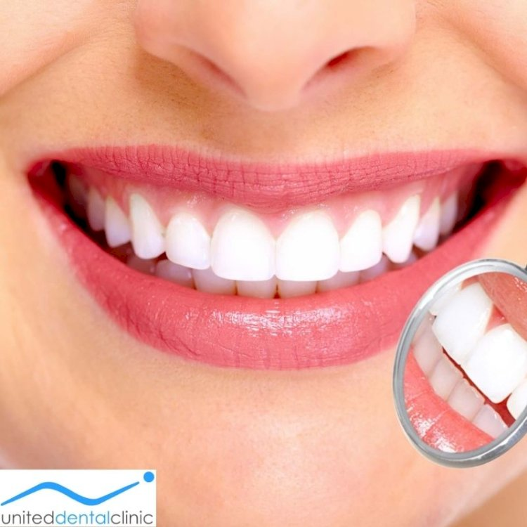 Pros and Cons of All-On-4 Dental Treatment