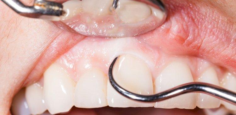 Oral Cancer Screenings And Biopsies